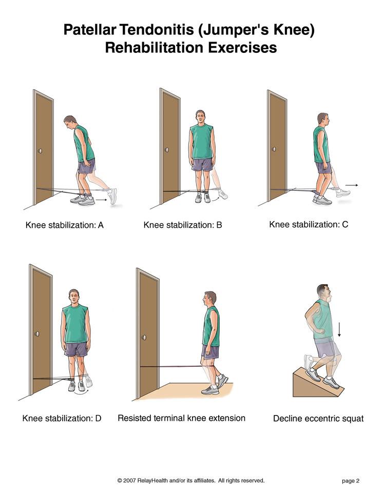 Algunos ejercicios para la tendinitis rotuliana